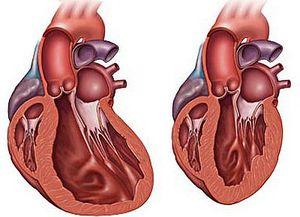 сердце при  кардиомиопатии