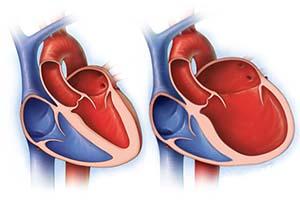 сердце с дилатационной кардиомиопатией