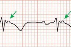 кардиограмма при аритмогенной кардиомиопатии