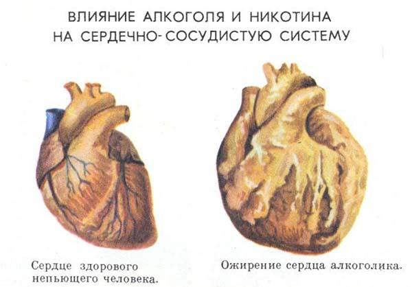 последствия алкоголя для сердца