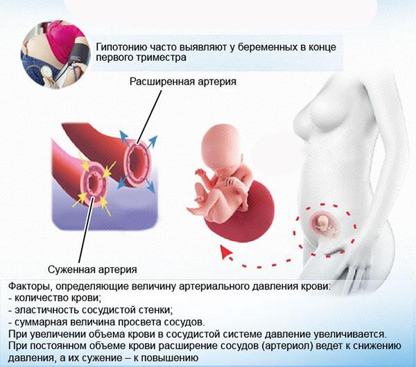 гипотония беременной