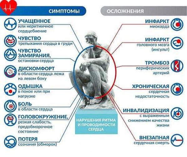 Патогенез и симптоматика аритмии