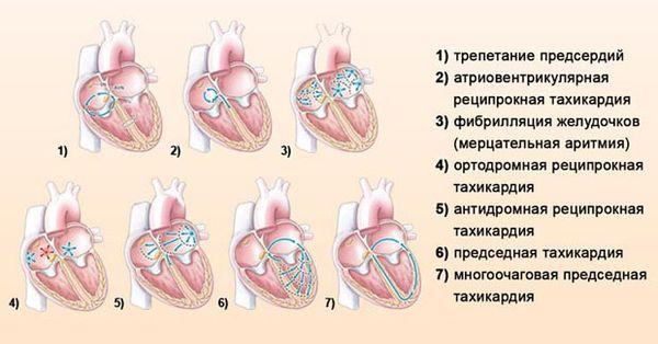 Изображение - Пульс 110 при нормальном давлении причины tahikardiya-vidy