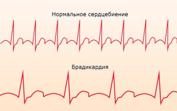 Изображение - Слабый пульс при нормальном давлении что делать bradikardiya
