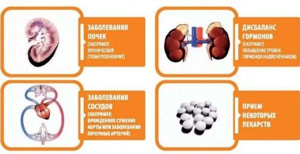Изображение - Как можно понизить давление без таблеток prichiny