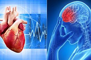 Чем отличается инфаркт от инсульта головного мозга