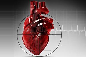 Признаки инфаркта у женщин старше 50 лет — Сердце