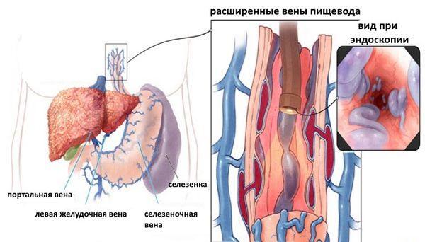 варикозное расширение вен пищевода