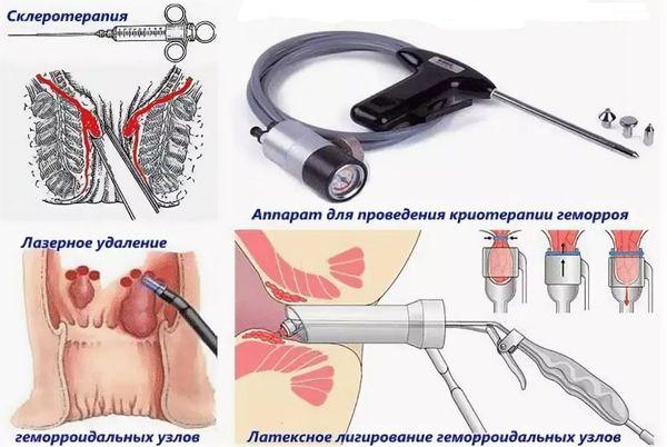 операции при геморрое