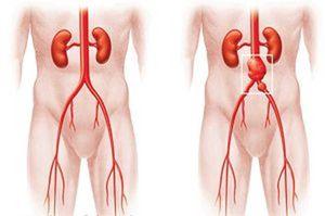 аневризма сосудов брюшной полости