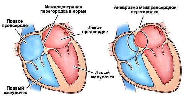 аневризма межсердечной перегородки