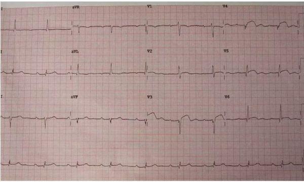 аневризма сердца на кардиограмме