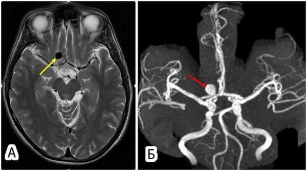 аневризма головного мозга мрт
