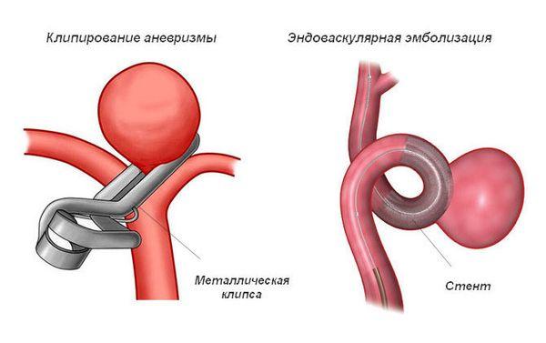 операции при аневризме