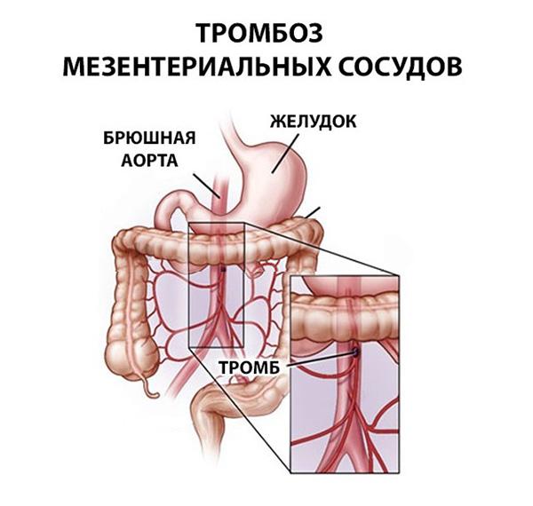 мезентериальный тромбоз кишечника