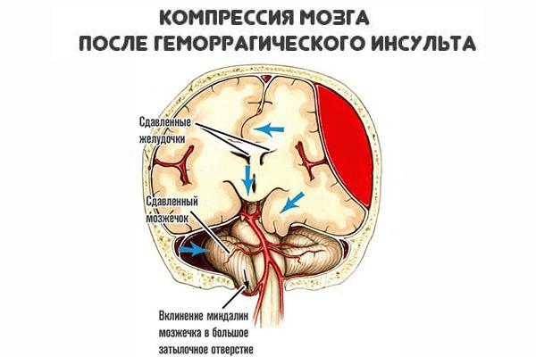компрессия мозга после инсульта