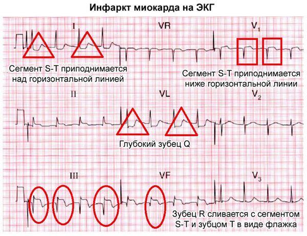 инфаркт на экг